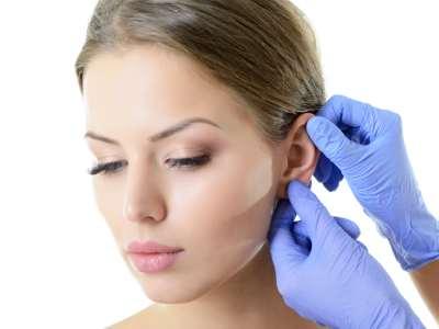 plastyka odstających małżowin usznych