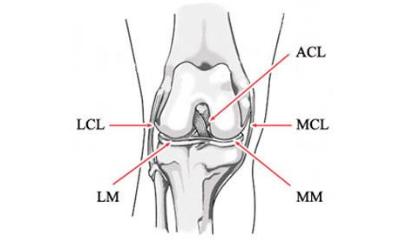 Najważniejsze więzadła kolana: MCL – więzadło poboczne piszczelowe, LCL – więzadło poboczne strzałkowe, ACL – więzadło krzyżowe przednie, PCL – więzadło krzyżowe tylne