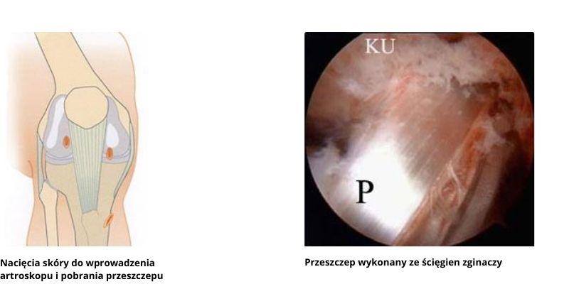 Nacięcia skóry dowprowadzenia artroskopu ipobrania przeszczepu. Przeszczep wykonany ze ścięgien zginaczy.