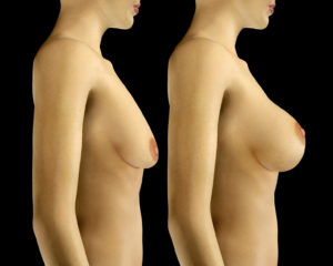 3d rendered illustration Breast Enlargement with Uplift surgery  before and after
