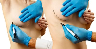 Collage. Plastic surgery for female breast correction.