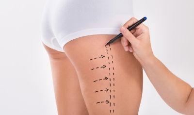 Surgeon Preparing Woman For Liposuction Surgery On Thigh