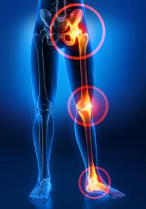 Schmerzsymptome an Gelenken 2