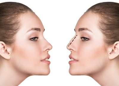 operacja plastyczna nosa wykonywana zŻagiel Med