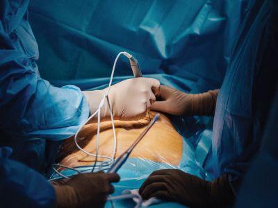 NanoKnife pionierska operacja wLublinie