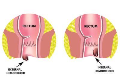 typy hemoroidów