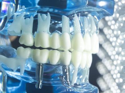 implanty zygomatyczne lublin