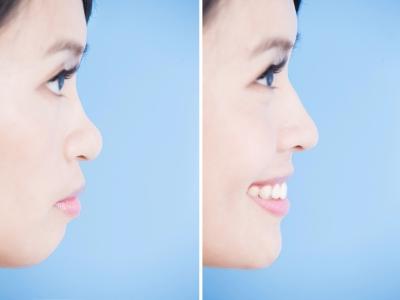 chirurgia twarzowo-szczękowa